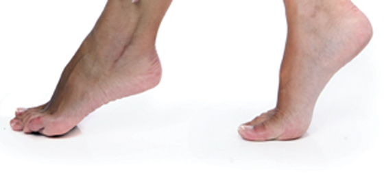 Inflammation i fotleden