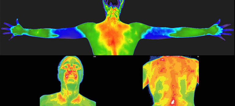 Medicinsk termografi-scanning Smärtfri och icke-invasiv screening, som äntligen tar ett kvantsprång i Europa