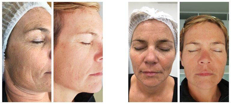 PhiLings-behandlingar som förändrar din hud